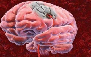 Виды нарушений мозгового кровообращения
