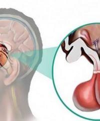 Симптомы, лечение и прогноз аденомы гипофиза головного мозга