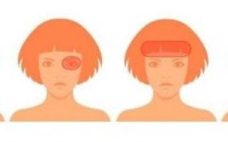 Виды головных болей и причины их появления