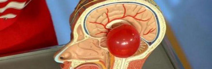 Что такое киста эпифиза (шишковидной железы) головного мозга?