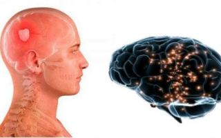 Все о лейкоареозе головного мозга