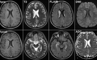 Что показывает и как делают МРТ головного мозга?