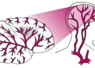 Все, что нужно знать об инфаркте головного мозга