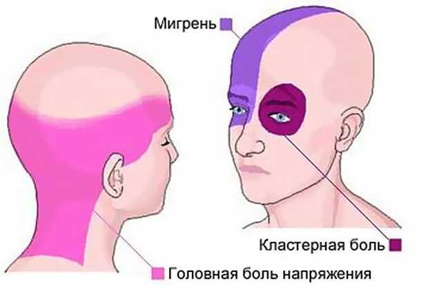 Локализация головной боли при мигрени и головной боли напряжения