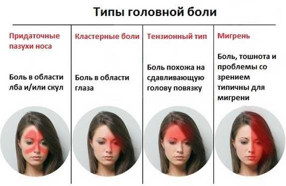 Разновидности головных болей