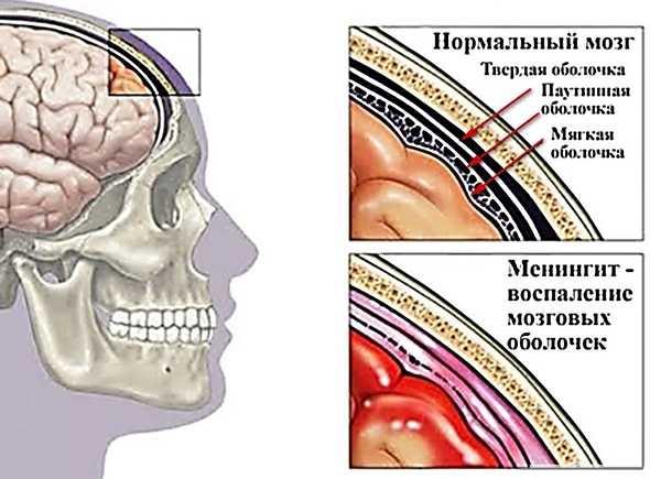 Какие оболочки поражает менингит