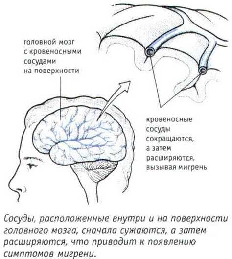 Сосудистые причины мигрени