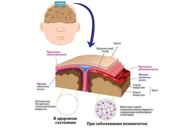 Менингит симптомы у взрослых инкубационный период