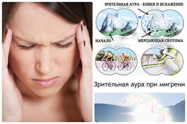 Зрительная аура при мигрени