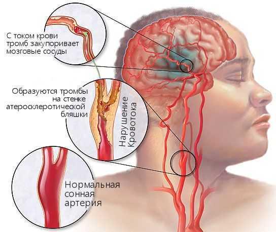 Болит голова и температура - это может быть атеросклероз сосудов