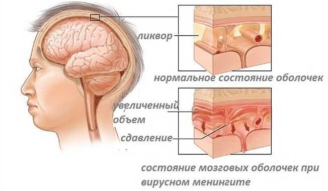 Состояние мозговых оболочек при менингите