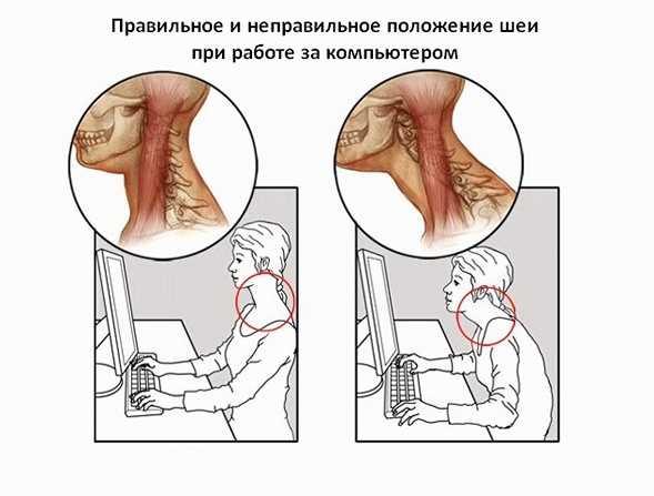 Болит шея и голова