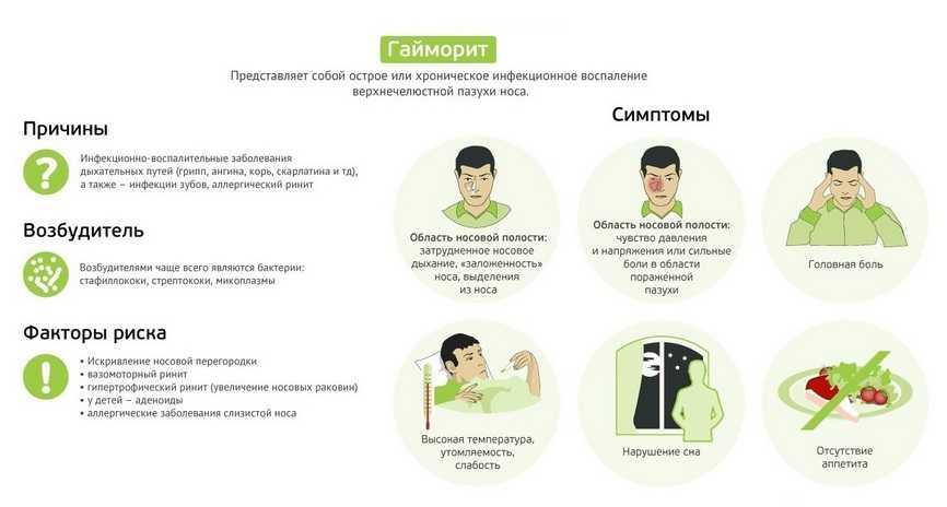 Гайморит инфографика