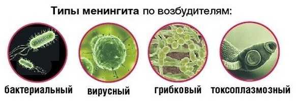 Типы менингита по возбудителям