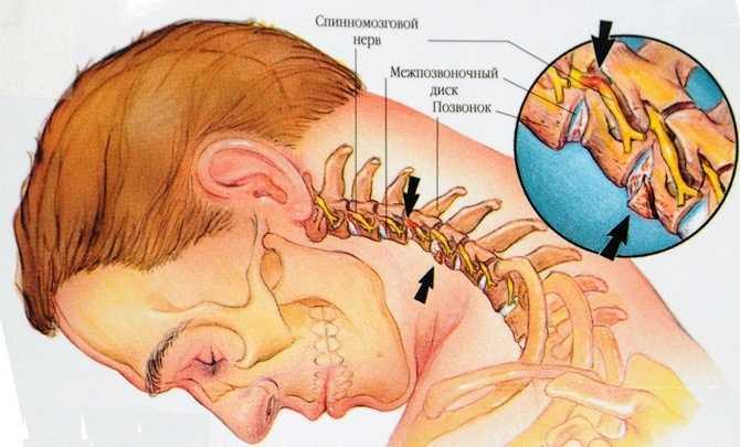 Шейный остеохондроз головная боль