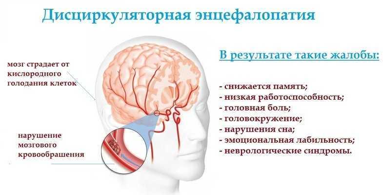 Что такое дисциркуляторная энцефалопатия