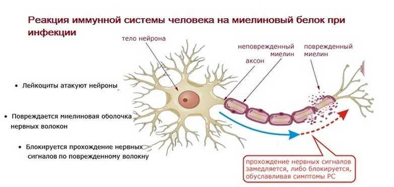 Реакция иммунной системы на миелиновый белок при инфекции