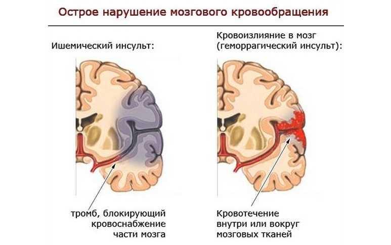 Острые нарушение мозгового кровообращения