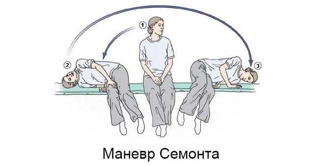 Маневр Семонта