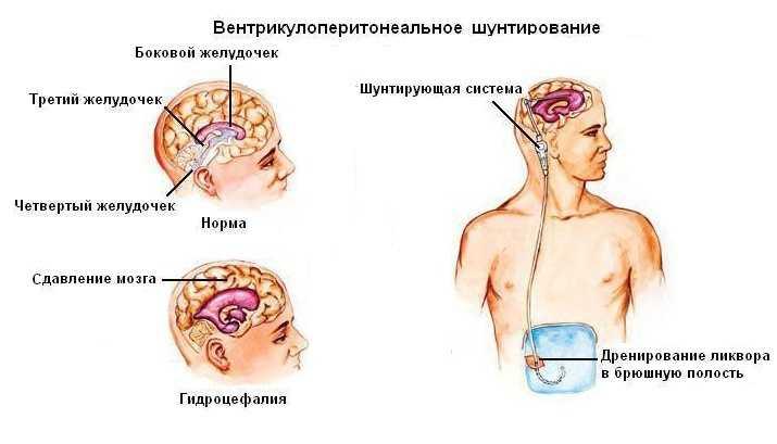 Вентрикулоперитонеальное шунтирование при гидроцефалии