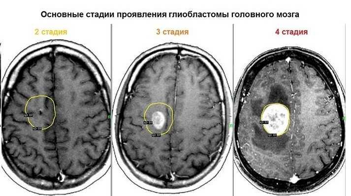 Основные стадии глиобластомы головного мозга