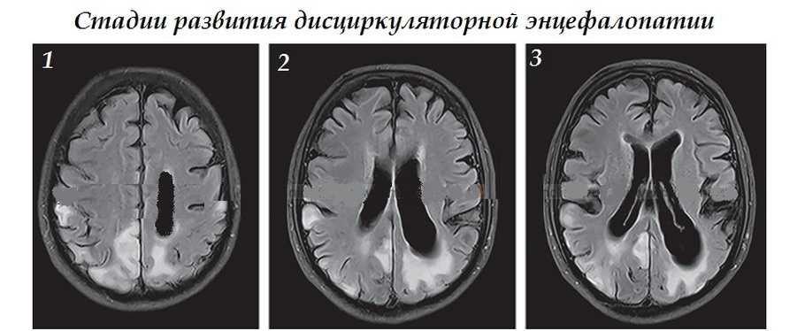 Стадии развития дисциркуляторной энцефалопатии