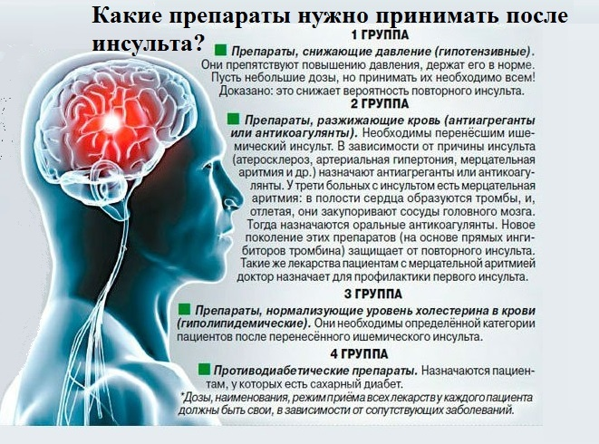Препараты, которые нужно принимать после инсульта
