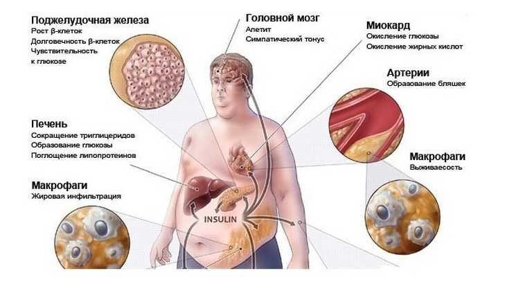 Влияние ожирения на головной мозг и организм в целом