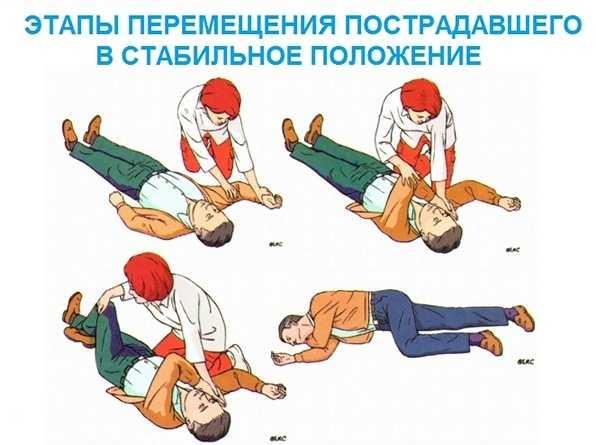 Безопасное положение пострадавшего при отсутствии сознания