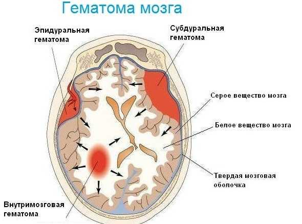 Гематома в мозге