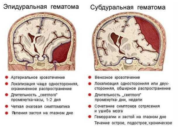 Виды гематом при мозговом кровоизлиянии