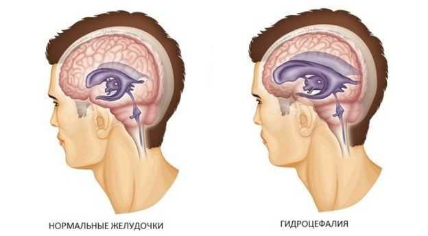 Гидроцефалия (водянка головного мозга)