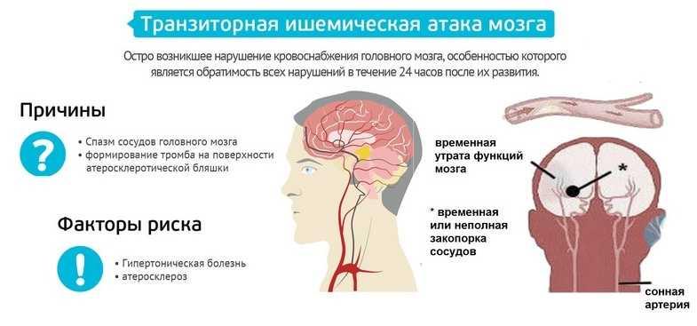 Микроинсульт - транзиторная ишемическая атака