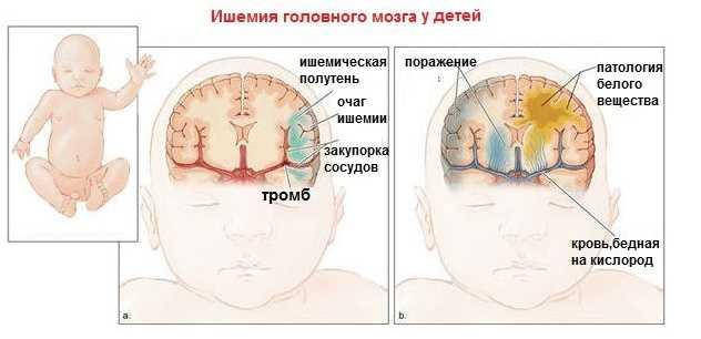 Ишемия головного мозга у детей
