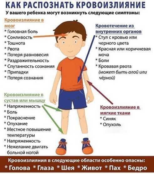 Как распознать кровоизлияние у ребенка