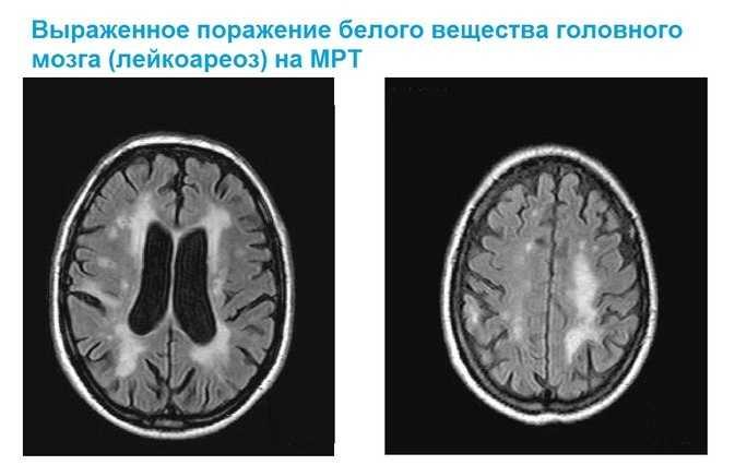 Лейкоареоз на МРТ