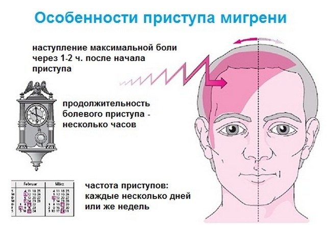Особенности приступа мигрени