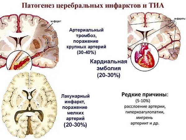 Патогенез ТИА и церебрального инфаркта