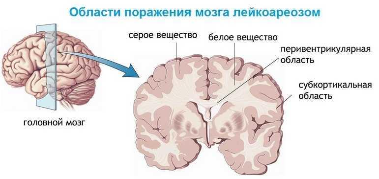 Области поражения мозга лейкоареозом