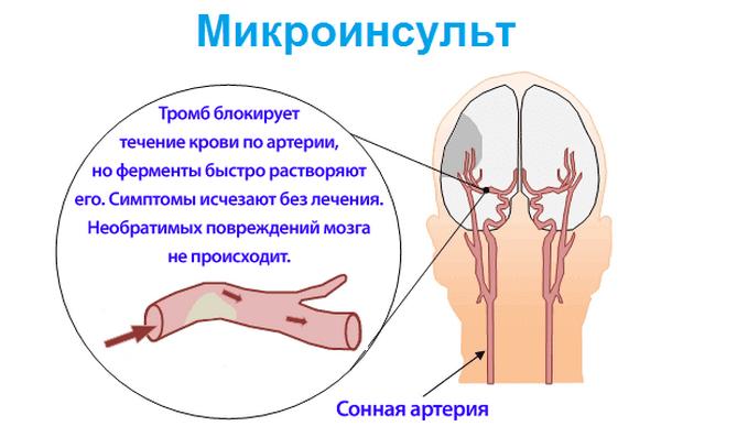 Блокирование тромбов при микроинсульте