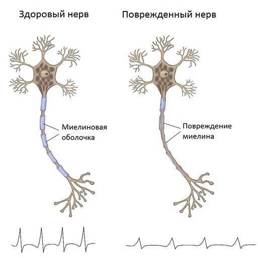 Разрушение миелиновой оболочки нерва