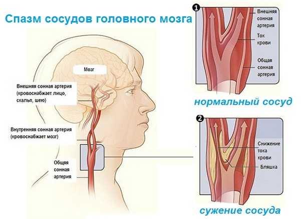 Проявление спазма сосудов головного мозга