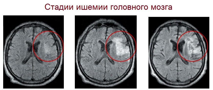 Стадии ишемии головного мозга на МРТ