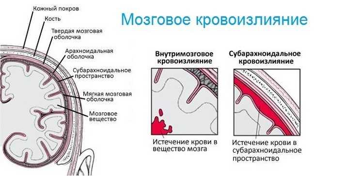 Мозговое кровоизлияние от энцефалита