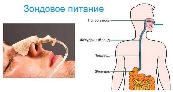 Система зондового питания