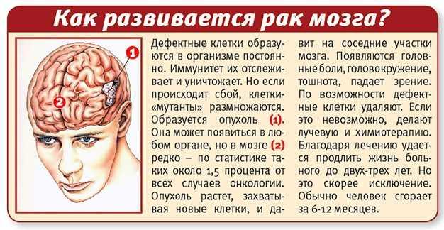 Прогноз опухоли головного мозга