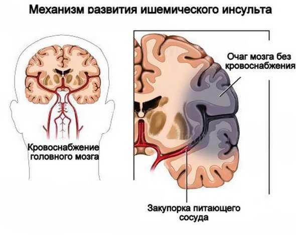 Ишемический инсульт что это