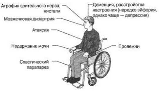 Последствия рассеянного склероза