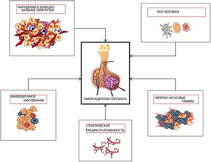 Причины микроаденомы гипофиза