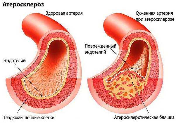 Головные боли напряжения эффективные способы устранения недуга